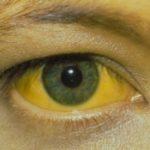 Alertă în Brazilia față de extinderea febrei galbene
