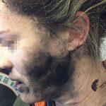 Un nou pericol tehnologic, căștile unei turiste i-au explodat în timpul ascultării