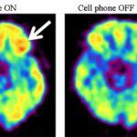 Telefoanele mobile afectează activitatea creierului