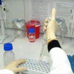 Prima terapie genică pentru tratarea leucemiei, la un pas de aprobare din partea FDA