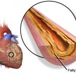 Test online pentru evaluarea riscului de boli cardiovasculare