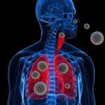 Atentie, aerul conditionat din birouri aduce boala legionarului